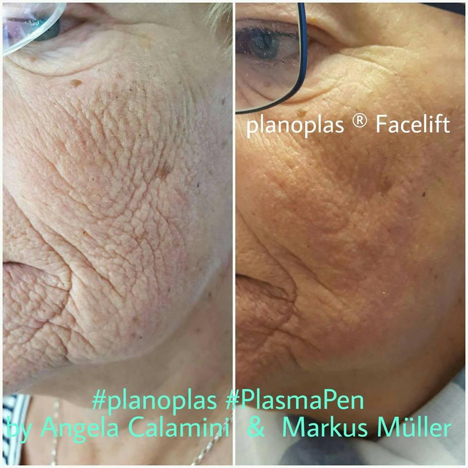 Plasma Pen - Wrinkles Results