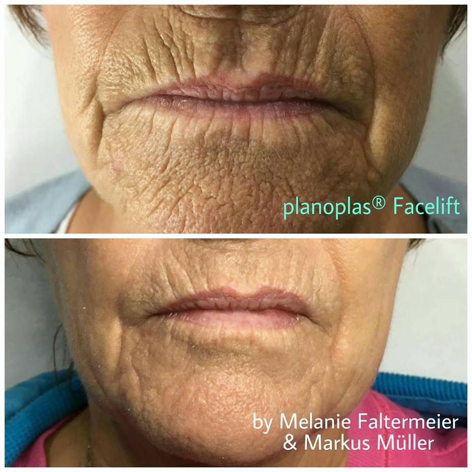 Plasma Pen - Skin Tightening Results