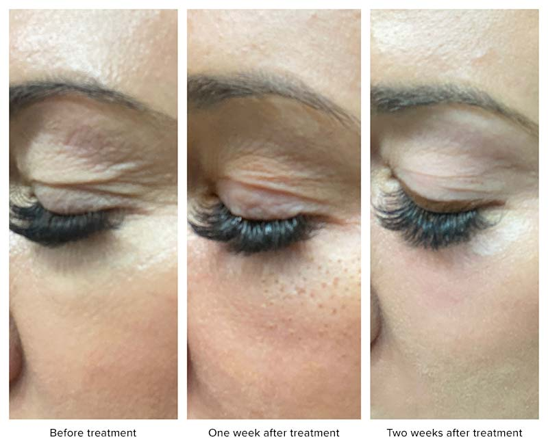 Plasma Pen Treatment of the eyelid and below the eye.